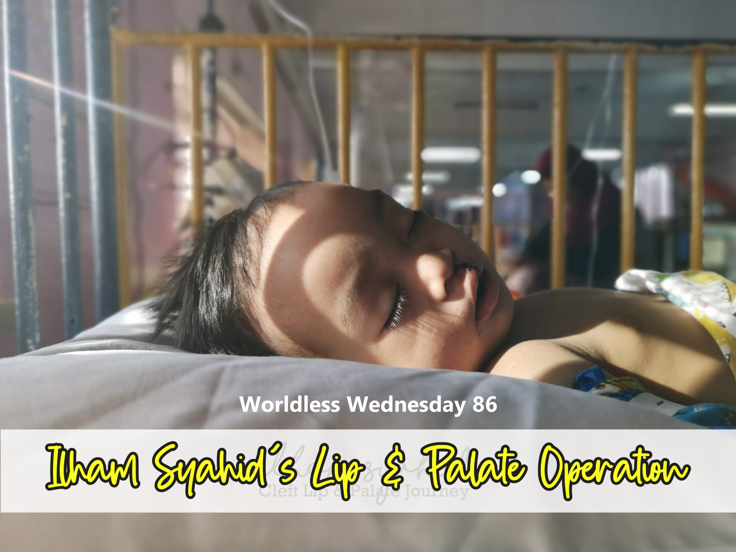 Wordless Wednesday 86 - Ilham Syahid's Lip & Palate Operation